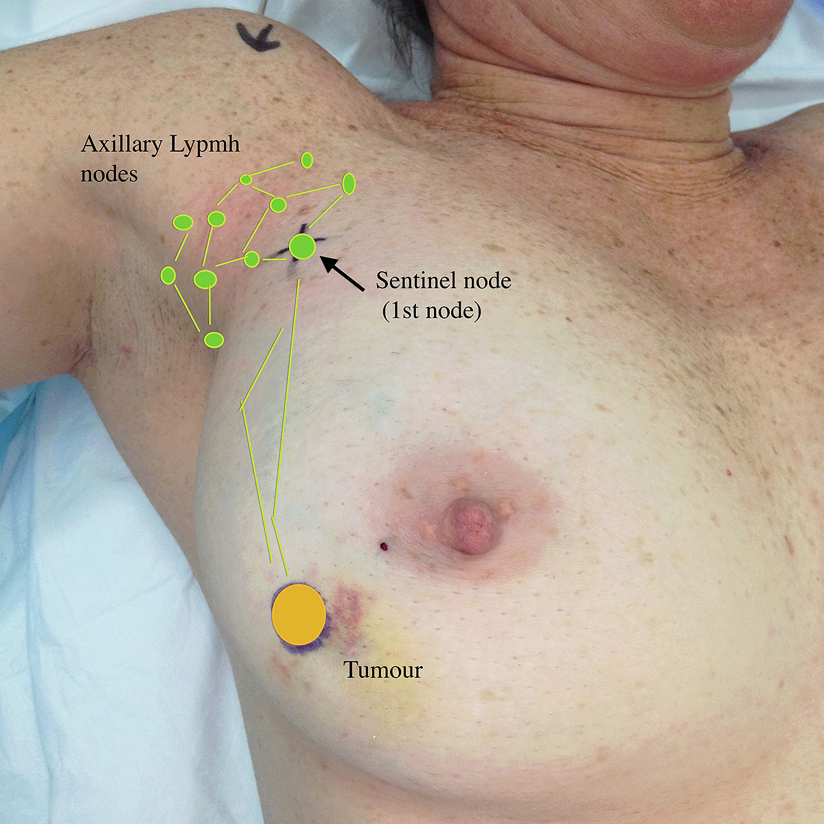 Axillary Lymph Node Surgery Axillary Lymph Node Clearance And Sentinel Lymph Node Biopsy Breastendocrinebrisbane